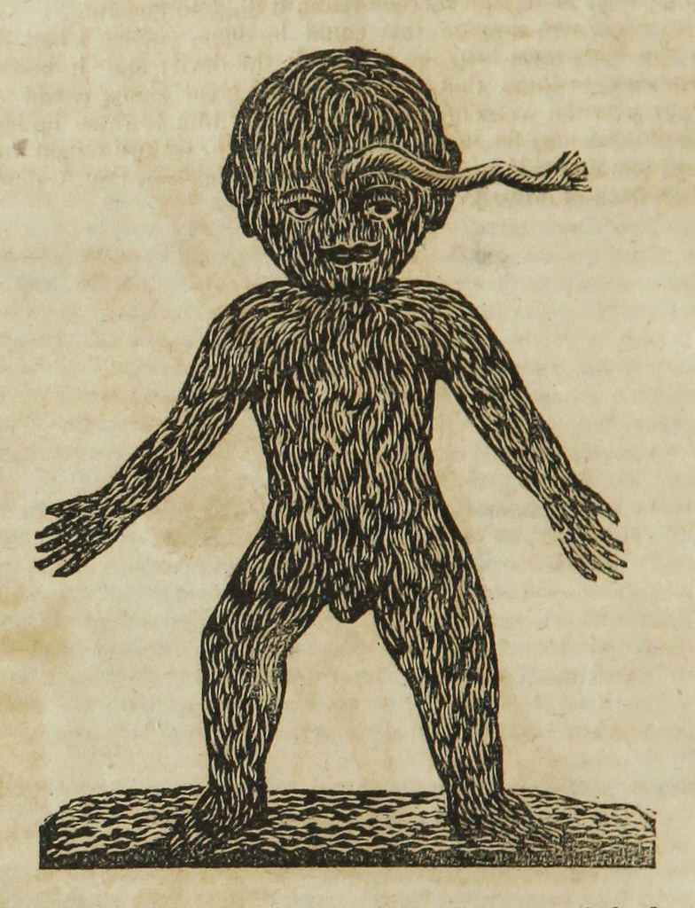 hairy-child