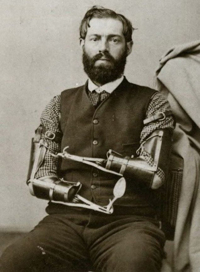 samuel-decker-civil-war-veteran-and-maker-of-prosthetics